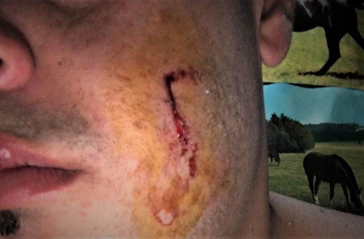 Así quedó el rostro de la víctima, que logró evitar que lo apuñalen en el cuerpo.